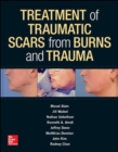 Treatment of Scars from Burns and Trauma - Book