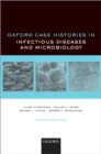 Oxford Case Histories in Infectious Diseases and Microbiology - eBook