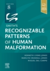 Smith's Recognizable Patterns of Human Malformation - E-Book - eBook