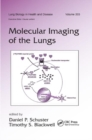 Molecular Imaging of the Lungs - Book