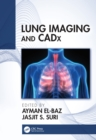 Lung Imaging and CADx - eBook