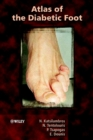 Atlas of the Diabetic Foot - eBook