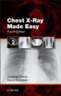 Chest X-Ray Made Easy E-Book - eBook