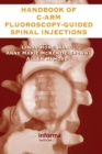 The Handbook of C-Arm Fluoroscopy-Guided Spinal Injections - Book