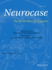 Emotions in Neurological Disease : A Special Issue of Neurocase - eBook