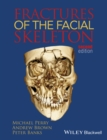 Fractures of the Facial Skeleton - eBook