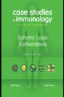 Case Studies in Immunology: Systemic Lupus Erythematosus : A Clinical Companion - eBook