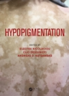 Hypopigmentation - eBook
