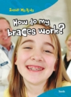 How do my Braces Work? - eBook