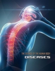 Science of the Human Body: Diseases - Book