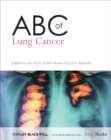 ABC of Lung Cancer - eBook