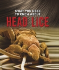 What You Need to Know About Head Lice - Book