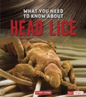 What You Need to Know about Head Lice - eBook