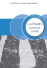 Thoracic Imaging : Illustrated Clinical Cases, Second Edition - eBook