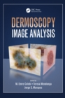 Dermoscopy Image Analysis - eBook