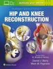 Illustrated Tips and Tricks in Hip and Knee Reconstructive and Replacement Surgery - Book