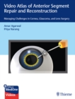 Video Atlas of Anterior Segment Repair and Reconstruction : Managing Challenges in Cornea, Glaucoma, and Lens Surgery - eBook