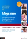 Illustrated Treatment for Migraine Using Acupuncture, Moxibustion and Tuina Massage - Book
