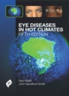 Eye Diseases in Hot Climates - Book