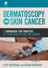 Dermatoscopy and Skin Cancer : A handbook for hunters of skin cancer and melanoma - Book