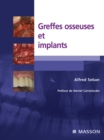 Greffes osseuses et implants - eBook