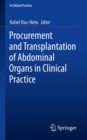 Procurement and Transplantation of Abdominal Organs in Clinical Practice - eBook