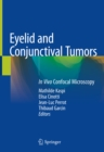 Eyelid and Conjunctival Tumors : In Vivo Confocal Microscopy - eBook