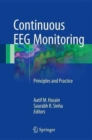 Continuous EEG Monitoring : Principles and Practice - Book