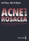 ACNE and ROSACEA - eBook