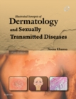 Illustrated Synopsis of Dermatology & Sexually Transmitted Diseases - E-book - eBook