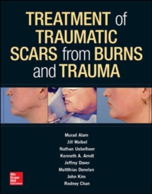 Treatment of Scars from Burns and Trauma, Hardback Book