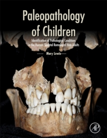 Paleopathology of Children : Identification of Pathological Conditions in the Human Skeletal Remains of Non-Adults, Hardback Book