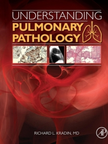 Understanding Pulmonary Pathology : Applying Pathological Findings in Therapeutic Decision Making, Paperback Book