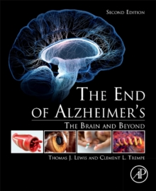 The End of Alzheimer's : The Brain and Beyond, Paperback / softback Book