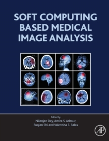 Soft Computing Based Medical Image Analysis, Paperback Book