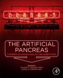 The Artificial Pancreas : Current Situation and Future Directions, Paperback / softback Book