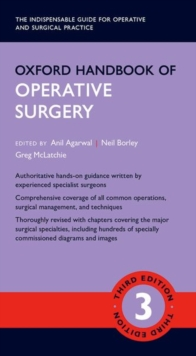 Oxford Handbook of Operative Surgery, Paperback / softback Book