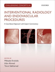 Challenging Concepts in Interventional Radiology, Paperback Book