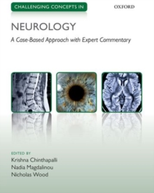 Challenging Concepts in Neurology : Cases with Expert Commentary, Paperback Book