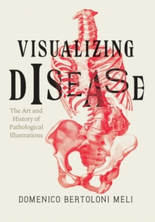 Visualizing Disease : The Art and History of Pathological Illustrations, Hardback Book
