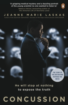 Concussion, Paperback / softback Book