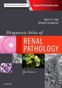Diagnostic Atlas of Renal Pathology, Hardback Book