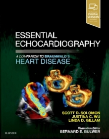 Essential Echocardiography : A Companion to Braunwald's Heart Disease, Paperback Book