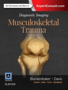 Diagnostic Imaging: Musculoskeletal Trauma, Hardback Book
