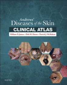 Andrews' Diseases of the Skin Clinical Atlas E-Book, EPUB eBook