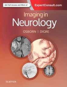 Imaging in Neurology, Hardback Book