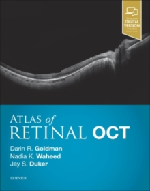 Atlas of Retinal OCT: Optical Coherence Tomography, Hardback Book