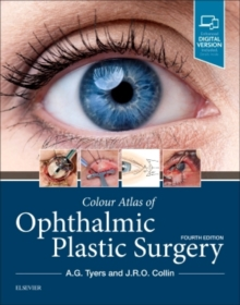 Colour Atlas of Ophthalmic Plastic Surgery, Hardback Book