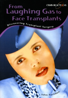 Laughing Gas to Hand Transplants: Discover Transplant Surgery, Paperback Book