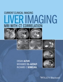Liver Imaging : MRI with CT Correlation, Hardback Book